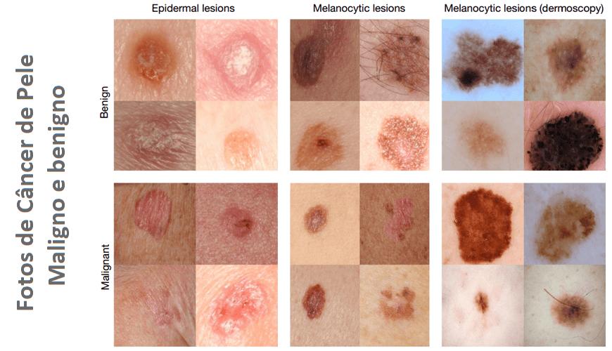 Fotos De Câncer De Pele