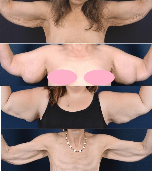 A Braquioplastia é Uma Cirurgia Plástica De Braço Indicada Para Remover Excesso De Gordura E Pele Em Casos De Perda De Peso Flacidez E Lipodistrofia