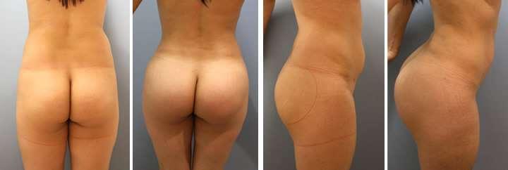 Aumento As Nádegas Com Implantes De Silicone Antes E Depois