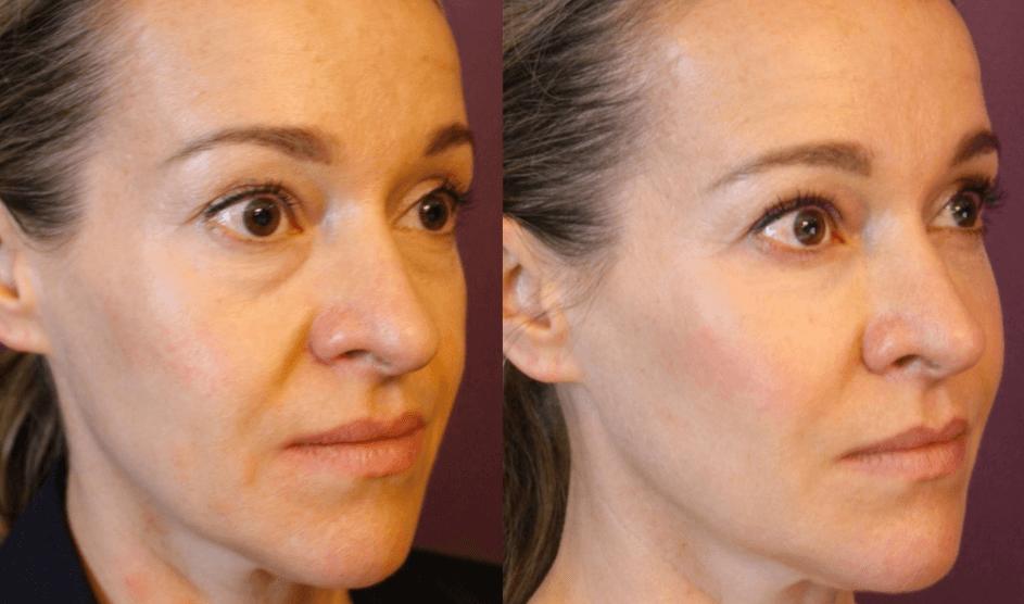 Bioplastia Facial Antes E Depois