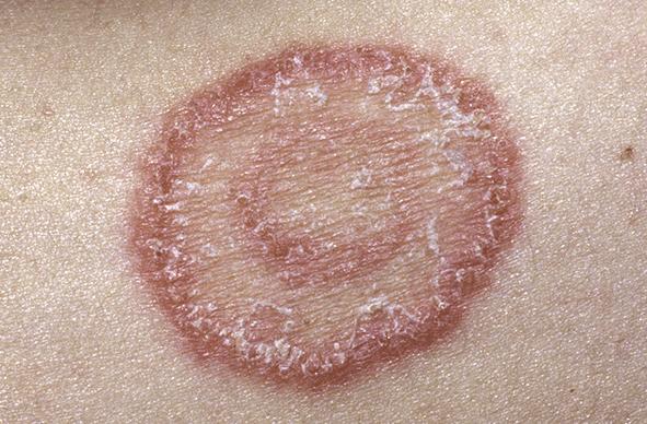 Entenda O Que São Infecções Fúngicas