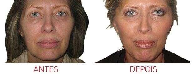 Fio de ácido poliláctico antes e depois