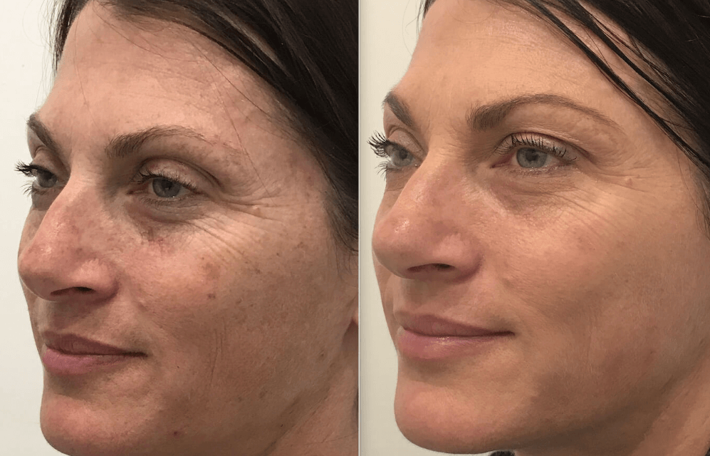 Fotorejuvenescimento Facial a Laser e IPL: Preço, indicações, benefícios, resultados