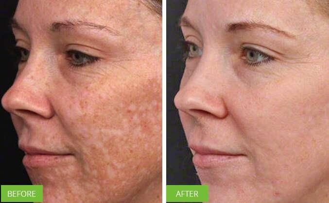 Fotorejuvenescimento Antes E Depois Do Tratamento