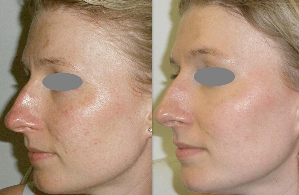 Fotorejuvenescimento Facial Antes E Depois Do Tratamento