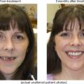 Fotos de Implantes Dentários 2