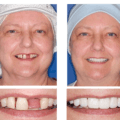 Fotos de Implantes Dentários 5