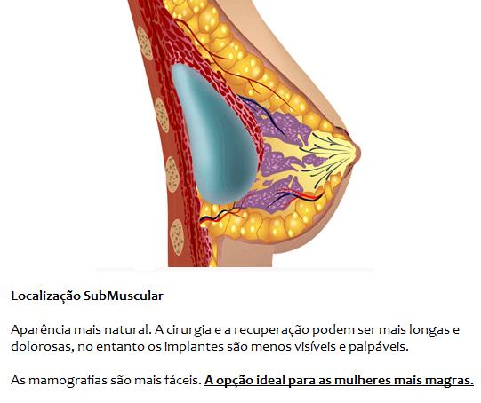 Localização Submuscular Da Prótese Mamária, Atrás Do Musculo Peitoral