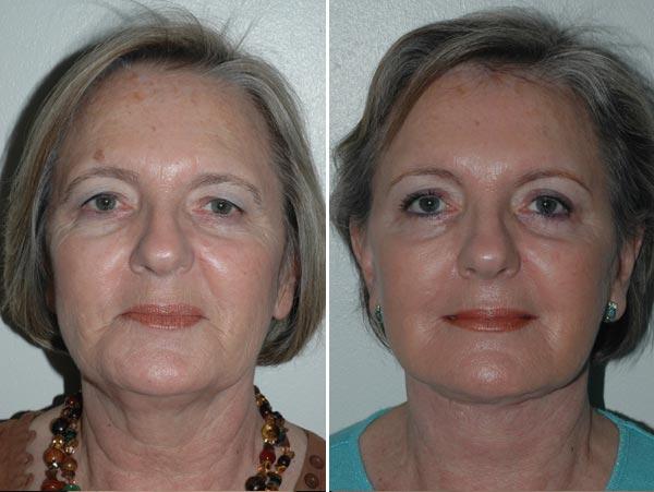 fotos de blefaroplastia antes e depois