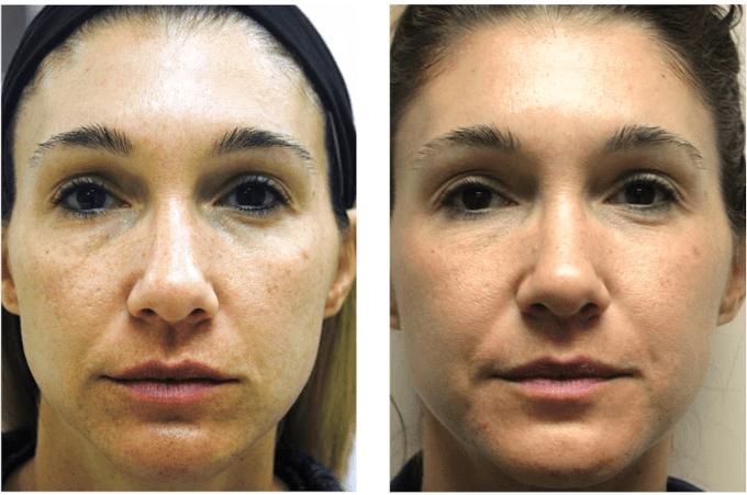 Preenchimento Facial Com ácido Hialurônico Antes E Depois 2