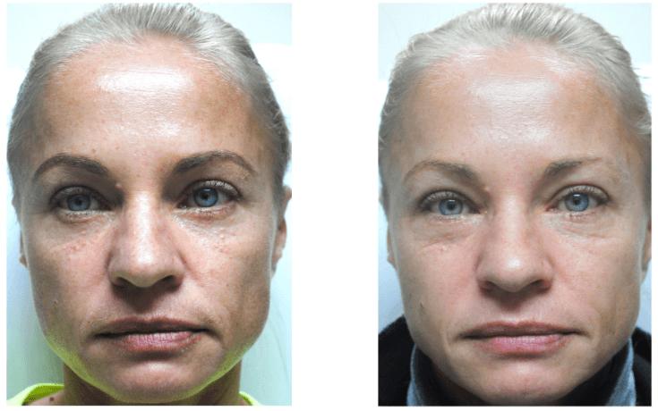 Preenchimento Facial Com ácido Hialurônico Antes E Depois