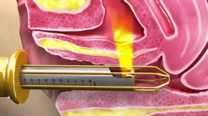 Rejuvenescimento Vaginal a Laser (Lifting vaginal): Conheça os benefícios da técnica