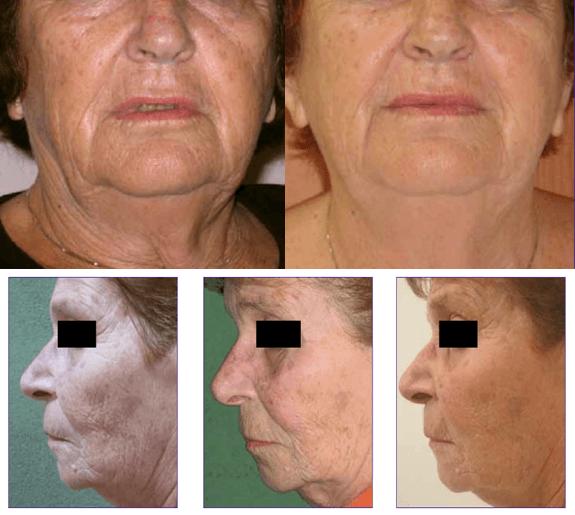 Resultado Antes E Depois Do Tratamento Com Radiofrequência Endymed 3 Deep
