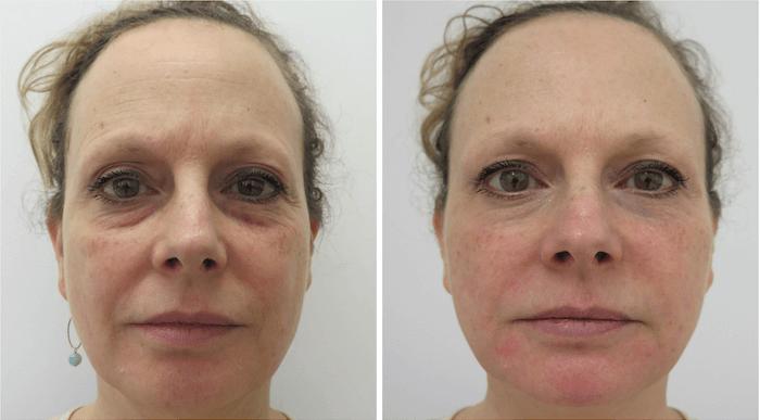 A Bioplastia Facial Recupera O Volume Perdido Com O Envelhecimento