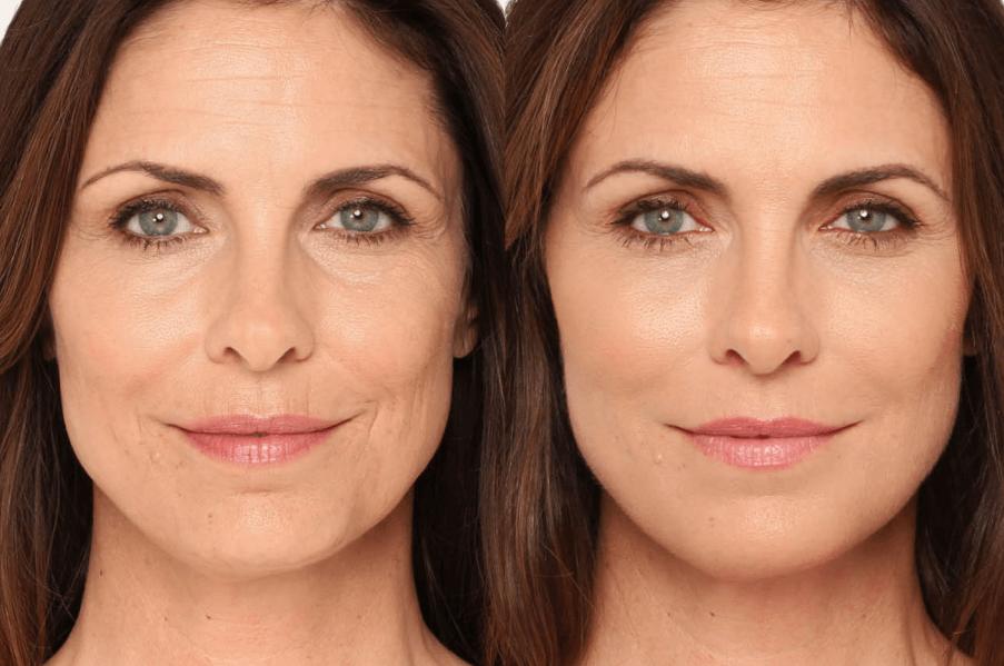 """Bioplastia Facial: Acabe com a Flacidez e consiga um efeito """"blush"""" na bochecha"""