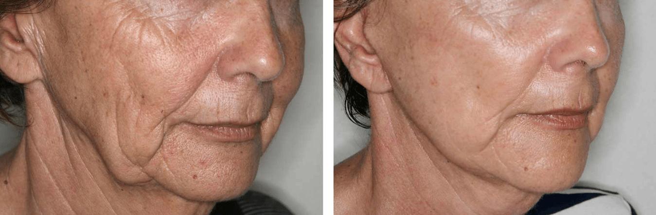 A Flacidez No Rosto E Queixo Pode Ser Eliminada Facilmente Através De Algumas Sessões De Radiofrequência