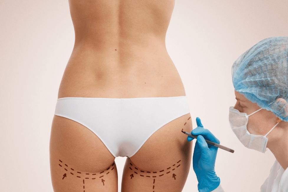 A Gluteoplastia De Aumento é O Procedimento Perfeito Para As Mulheres Com O Bumbum Magro