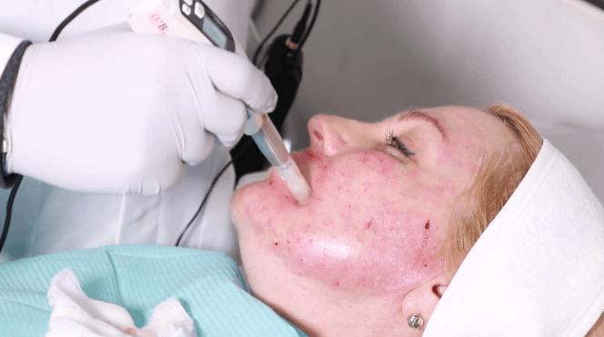 Mesoterapia: Para que serve, Substâncias utilizadas, Preços, efeitos colaterais