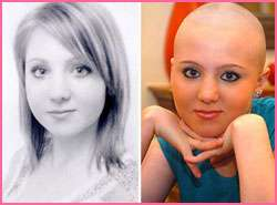 O que é Alopecia Areata? Conheça as causas e os melhores Tratamentos