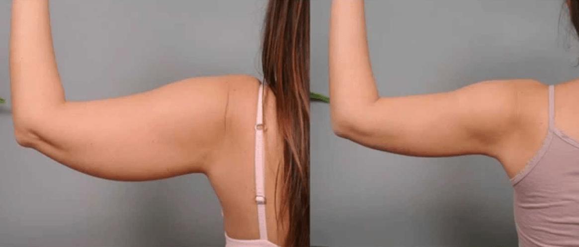 Antes E Depois Da Lipoaspiração A Laser