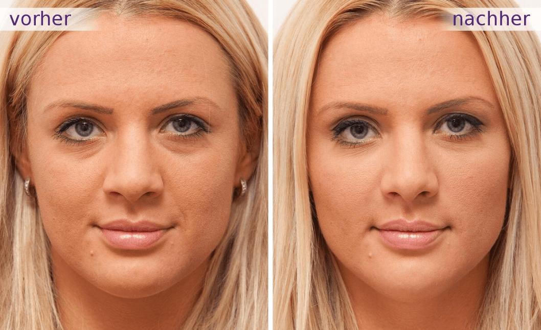 Antes E Depois De Sessão De ácido Hialurônico E Botox