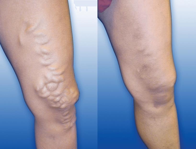 As Varizes Antes E Depois Da Cirurgia