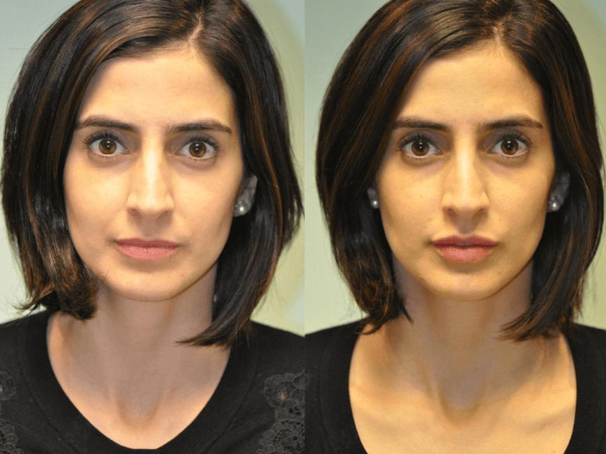 Aumento Labial Em Fotos Antes E Depois