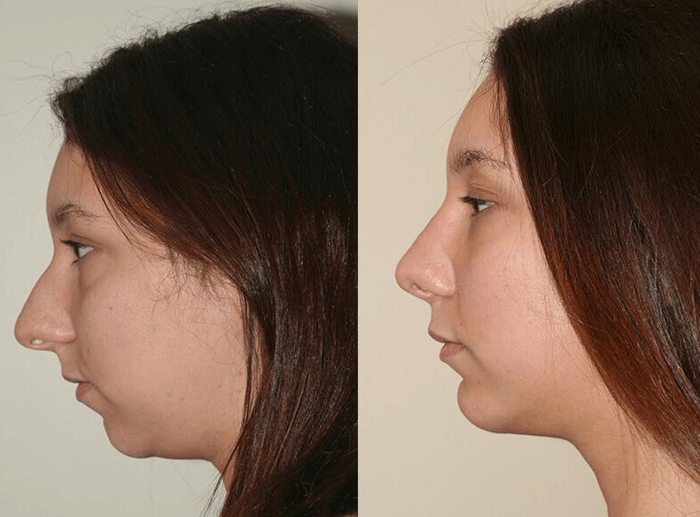 Bioplastia de Queixo: aumenta e corrige o mento, preço e indicações