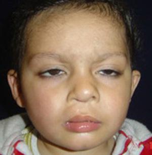 fissura labial