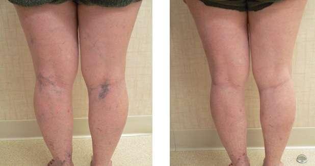 Tratamento para vasinhos (pequenas varizes) nas pernas