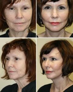 Entenda as Indicações do Mini Lifting Facial: Preços e Técnicas cirúrgicas utilizadas