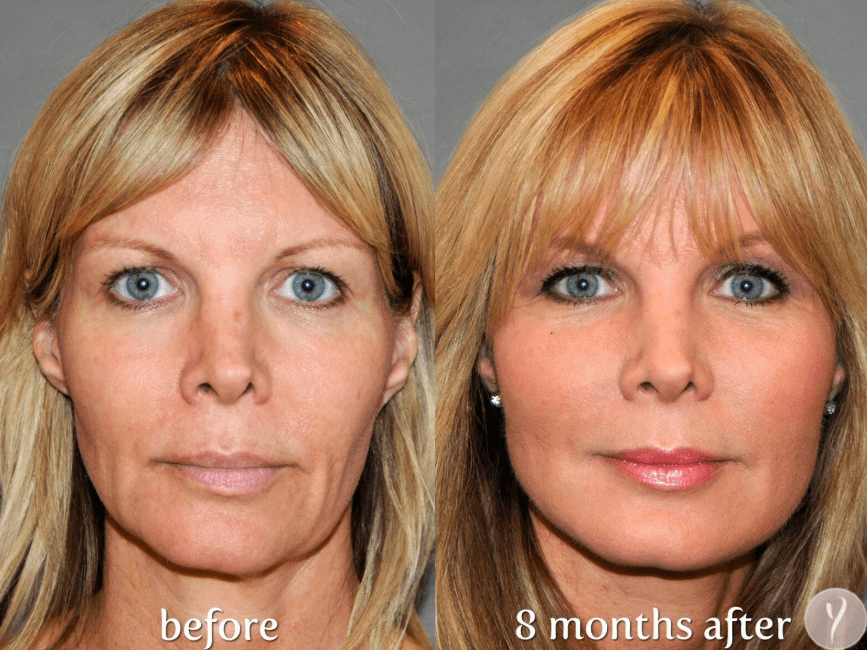 Foto De Lifting Facial