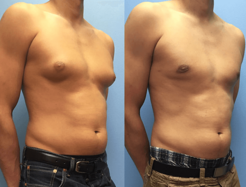 Fotos Antes E Depois Da Ginecomastia 2