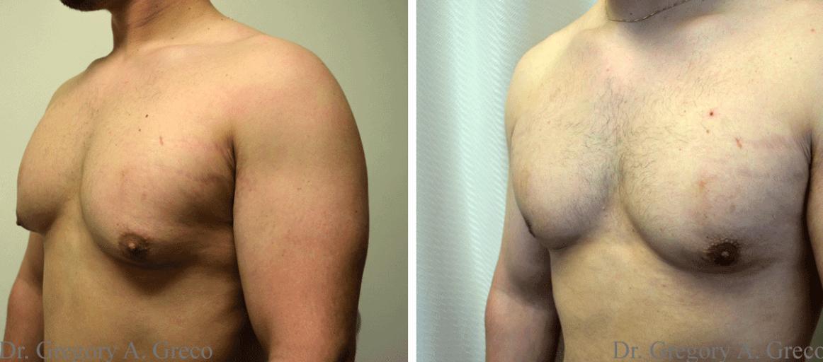 Fotos Antes E Depois Da Ginecomastia
