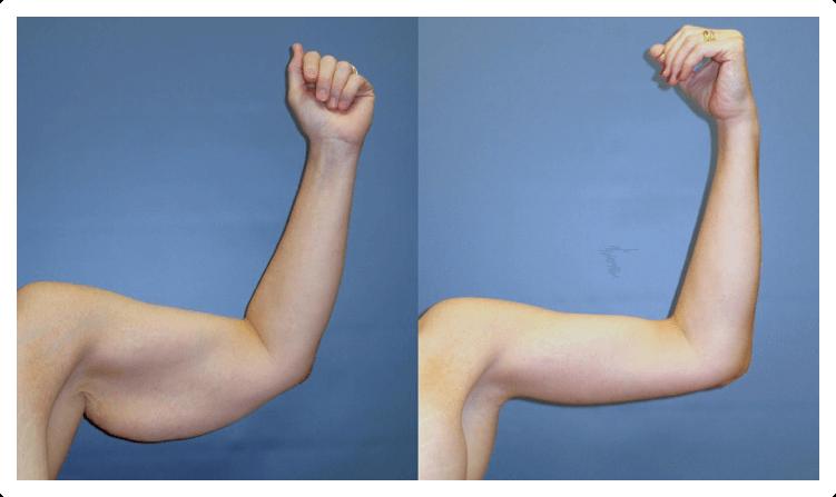 Fotos Da Braquioplastia Antes E Depois