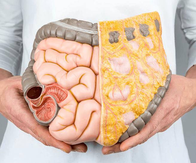 NARL: O tratamento que promete destruir a gordura visceral e localizada
