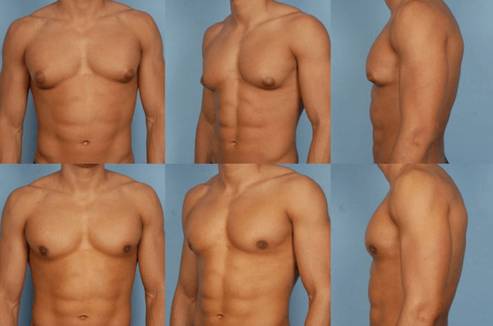 Imagens Reais Antes E Depois De Lipoaspiração Em Homem Com Ginecomastia