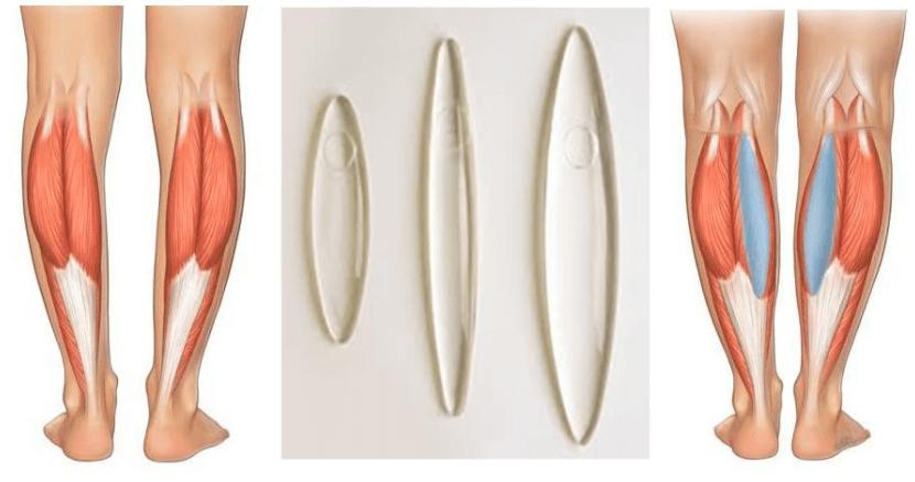 Implantes De Silicone Usados Para O Aumento Da Panturrilha