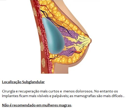 Localização Subglandular Do Implante Mamário, Por Cima Do Musculo Peitoral