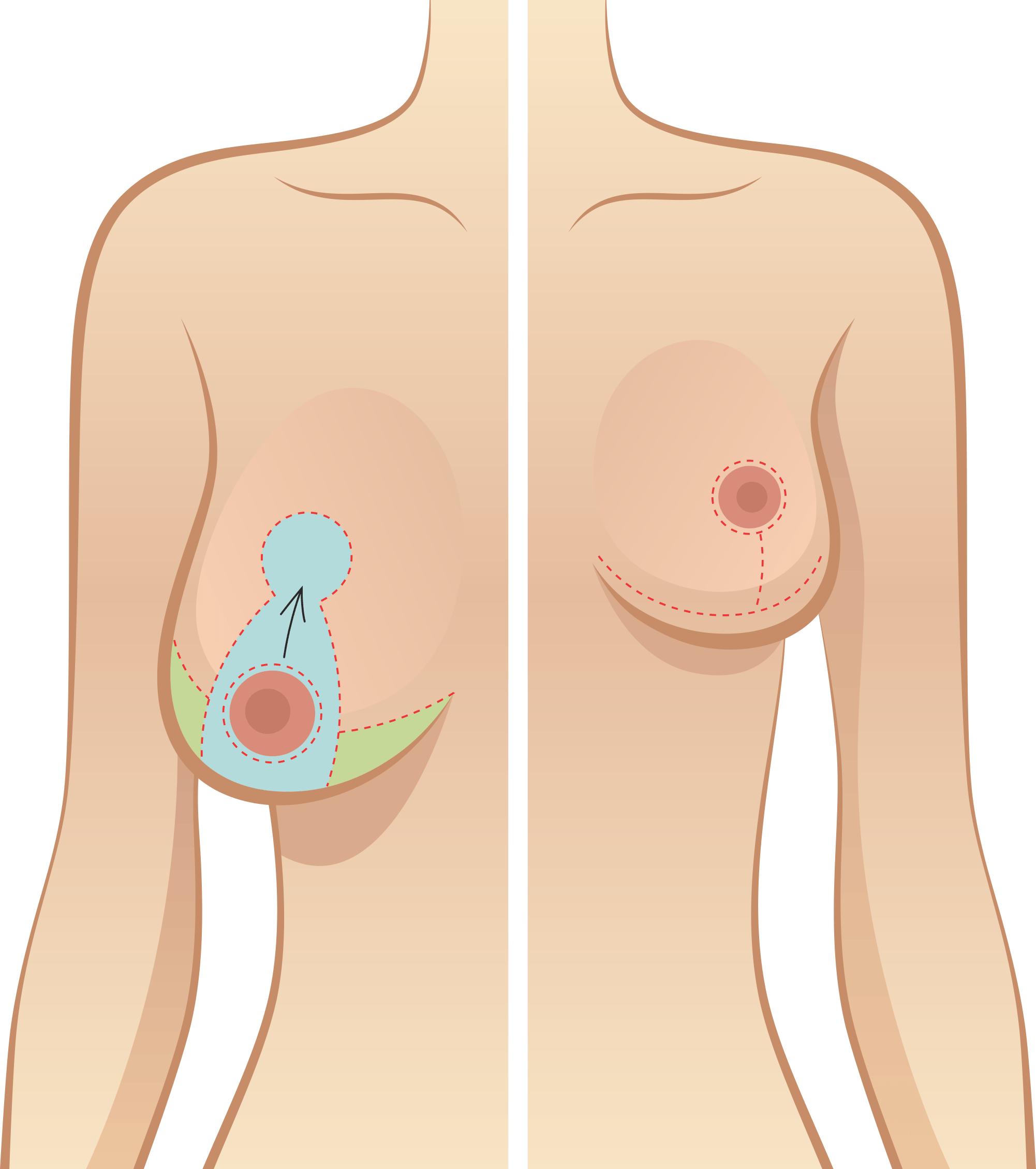 O que é a Mamoplastia de Redução: Preços, dicas, resultados e mais