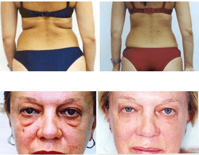 Mesoterapia Antes E Depois, Rosto E Corpo