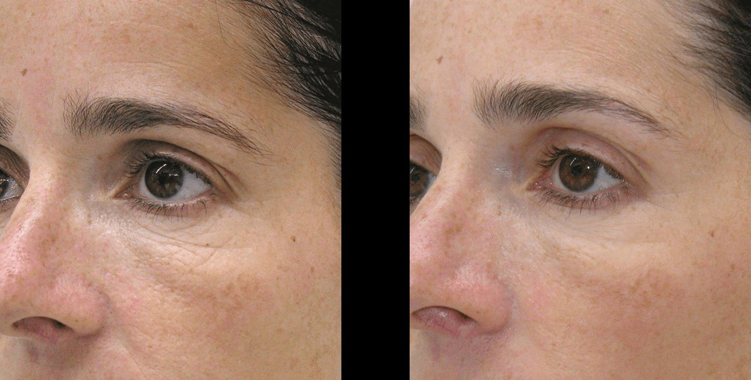 Mesoterapia Antes E Depois