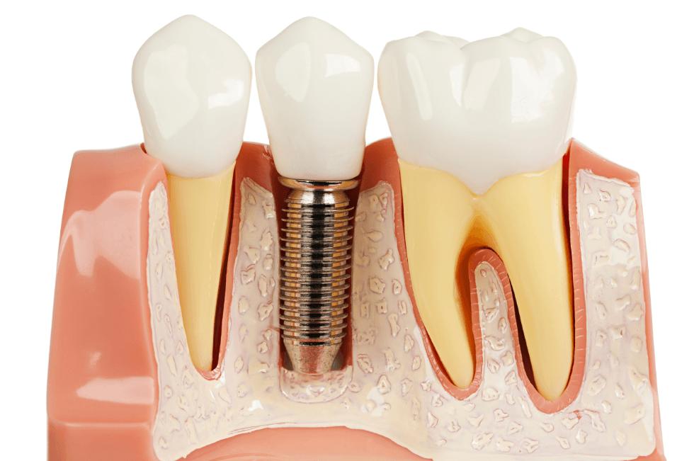 O Implante é Um Parafuso Que é Inserido Na Gengiva E Depois Vai Suportar A Coroa Que Vai Ser Aparafusada A Ele
