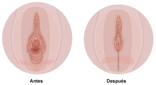 O que é a Perineoplastia? preço, fotos, pós operatório e indicações