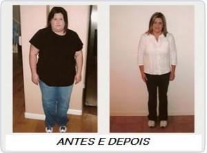 Conheça as Indicações da Cirurgia da Obesidade (cirurgia bariátrica)
