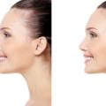 Resultado Antes E Depois Do Uso De Corretores Nasais