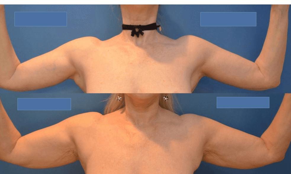 Resultado Da Braquioplastia Antes E Depois 1