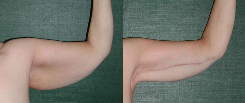Resultado Da Braquioplastia Antes E Depois 2