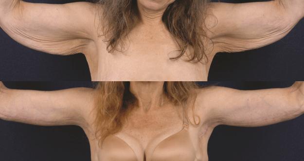 A Cirurgia que remove o excesso de flacidez do Braço (Dermolipectomia Braquial)