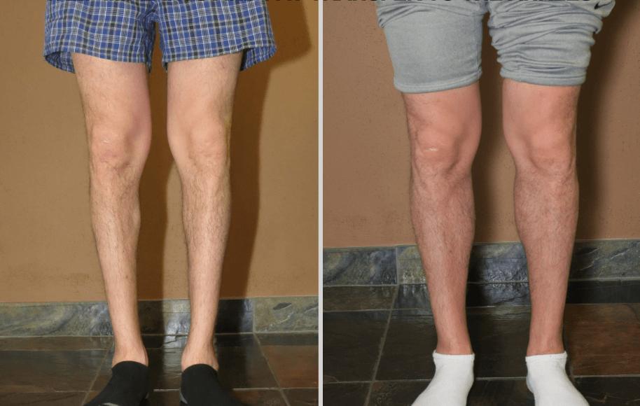 Resultado De Implante De Silicone Na Panturrilha Em Paciente Com As Pernas Arqueadas
